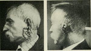 Efectos del Radio.