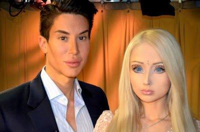 les ratés de la chirurgie esthétique Barbie et Ken