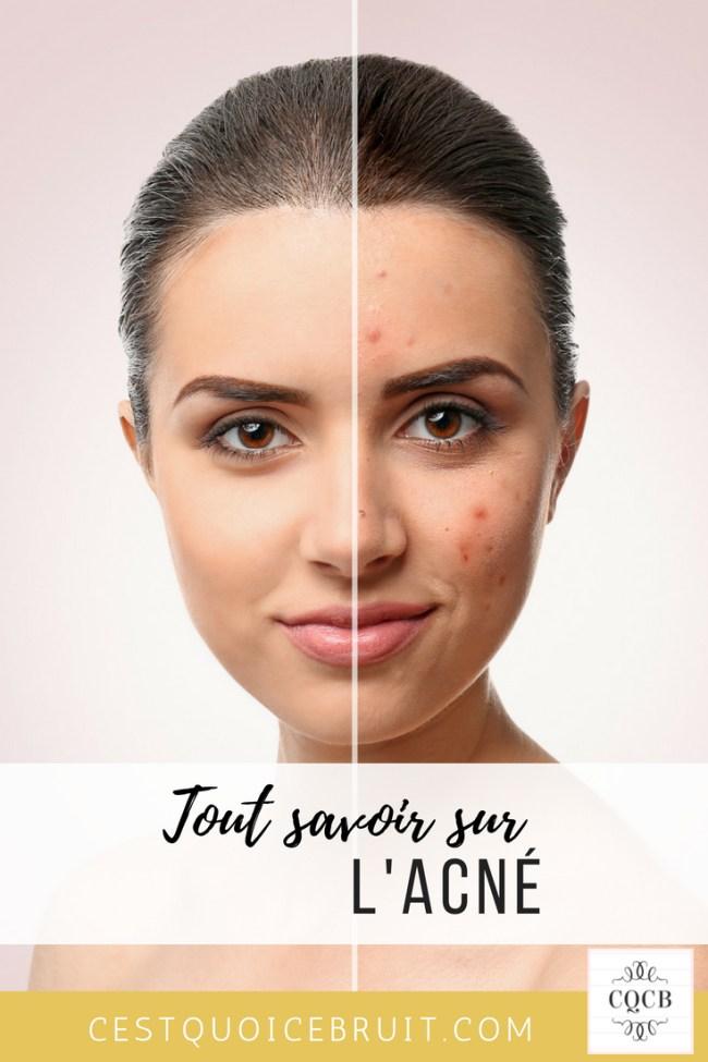 Tout savoir sur l'acné et comment soigner les boutons #acné #boutons #peau #skincare