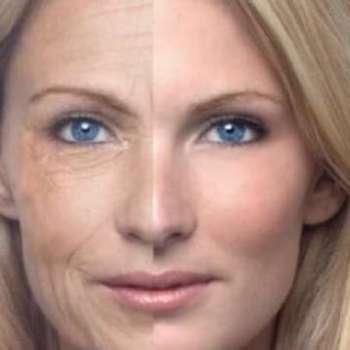 rughe invecchiamento viso