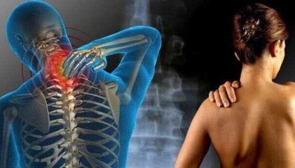 dolore fibromialgia