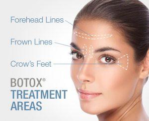 Botox Treatments Area