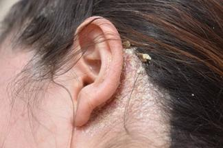 How Does It Affect The Scalp