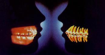 Maxillofacial Orthopedics