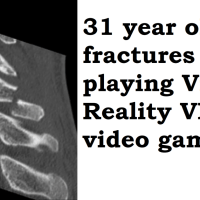 Man fractures neck from daily VR headset use