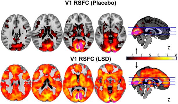 ayahuasca neuroscience