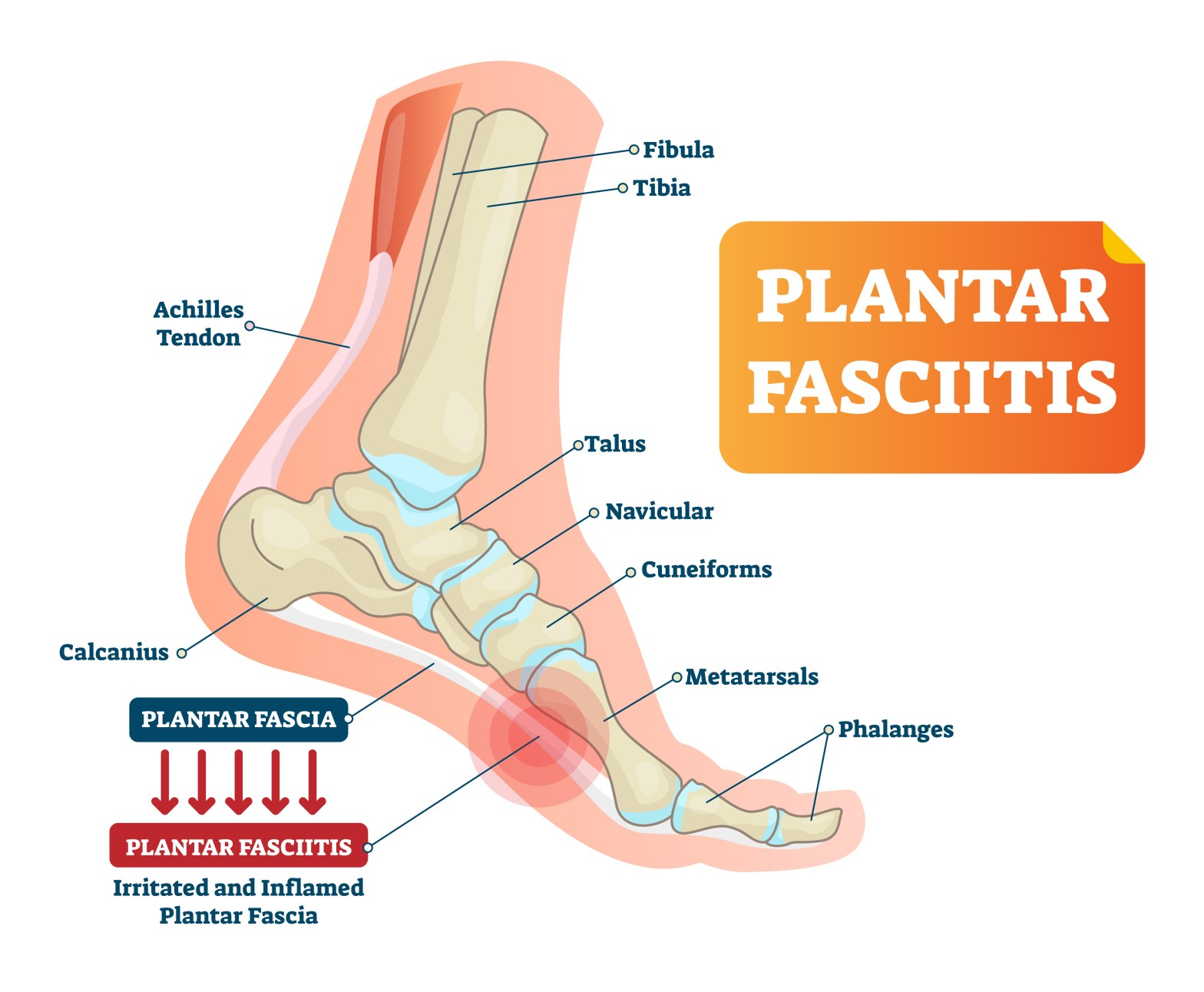 Image of Foot bones and location of Plantar Fasciitis
