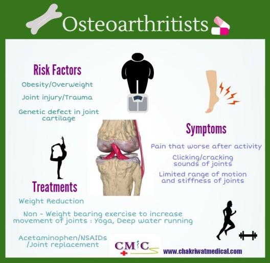Osteoarthritis Eng