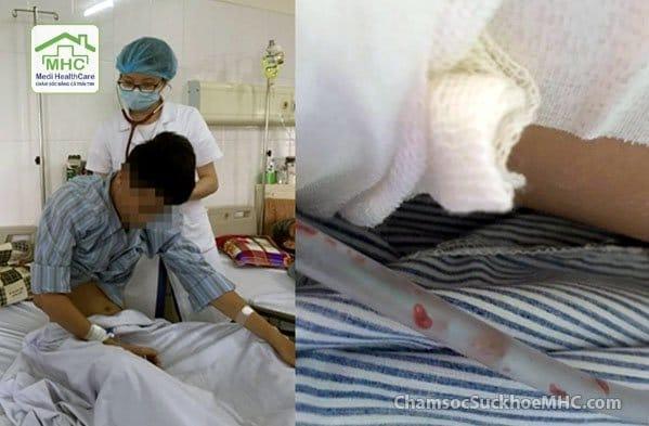 bị nhiễm sán lá phổi sán lá phổi bệnh viện nhiệt đới trung ương