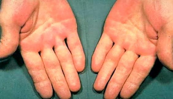 doan benh qua ban tay long ban tay mau do  Nhìn tay đoán bệnh: Kiểm tra sức khỏe ngay nếu tay bạn có những dấu hiệu sau doan benh qua ban tay long ban tay mau do