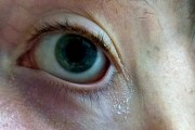 Vì sao mắt chúng ta có gỉ (ghèn) sau khi ngủ dậy?