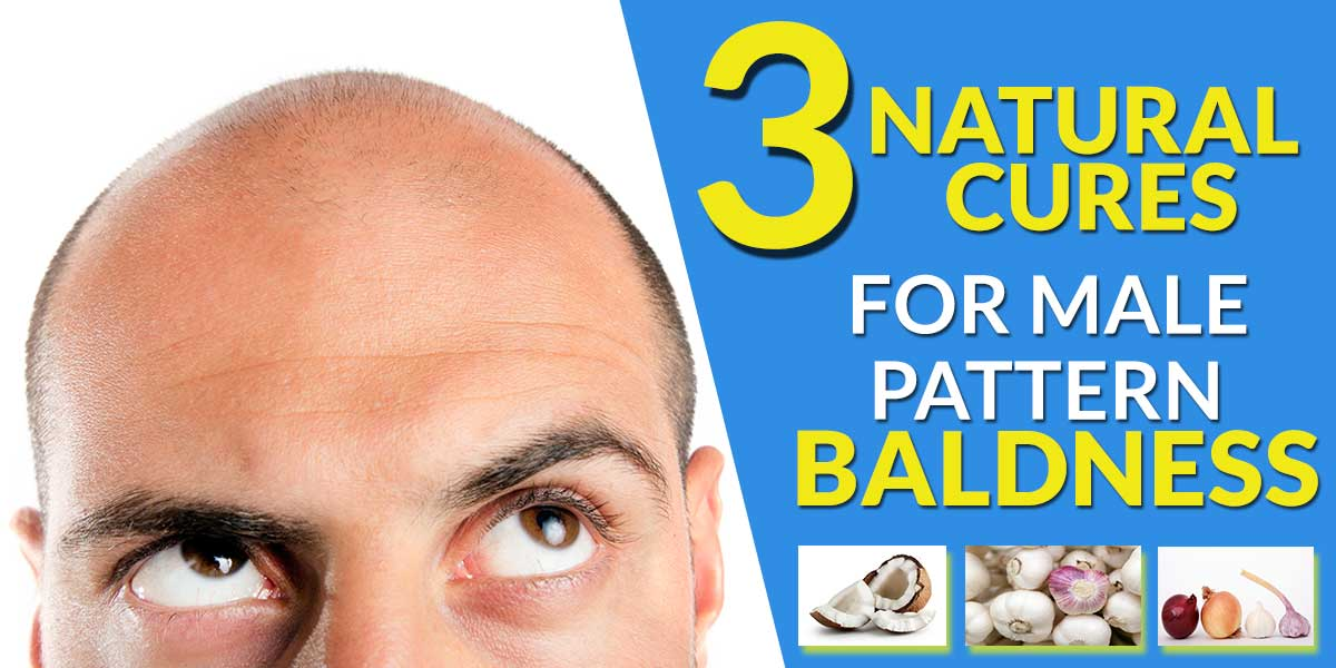 3 Natural Cures for Male Pattern Baldness
