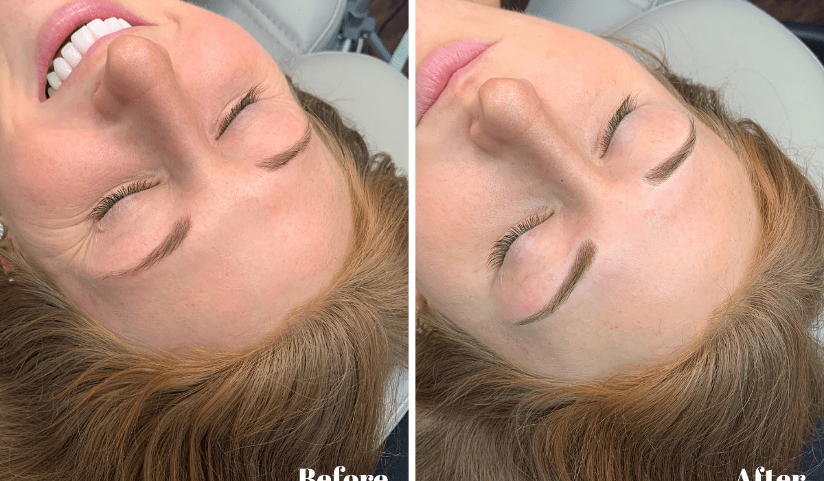 My Experience with Microblading