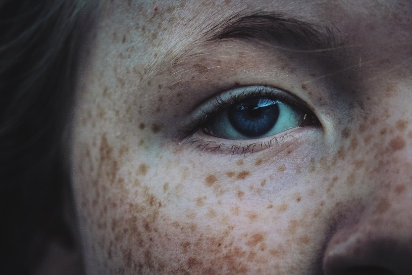 Lighten and Reduce Freckles