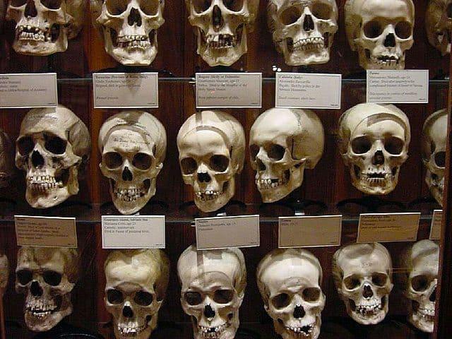 mutter-museum-skulls-wall