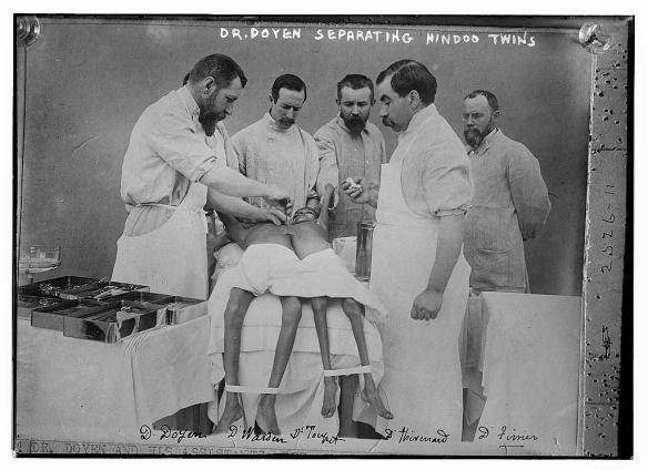 """Na początek zdjęcie z operacji rozdzielenia bliźniąt syjamskich. Dr Doyle i jego """"Hindoo Twins"""". Źródło: https://flic.kr/p/59xwRi"""