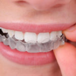Clear Orthodontic Treatments; DENTAL OFFICE CHARLOTTE NC