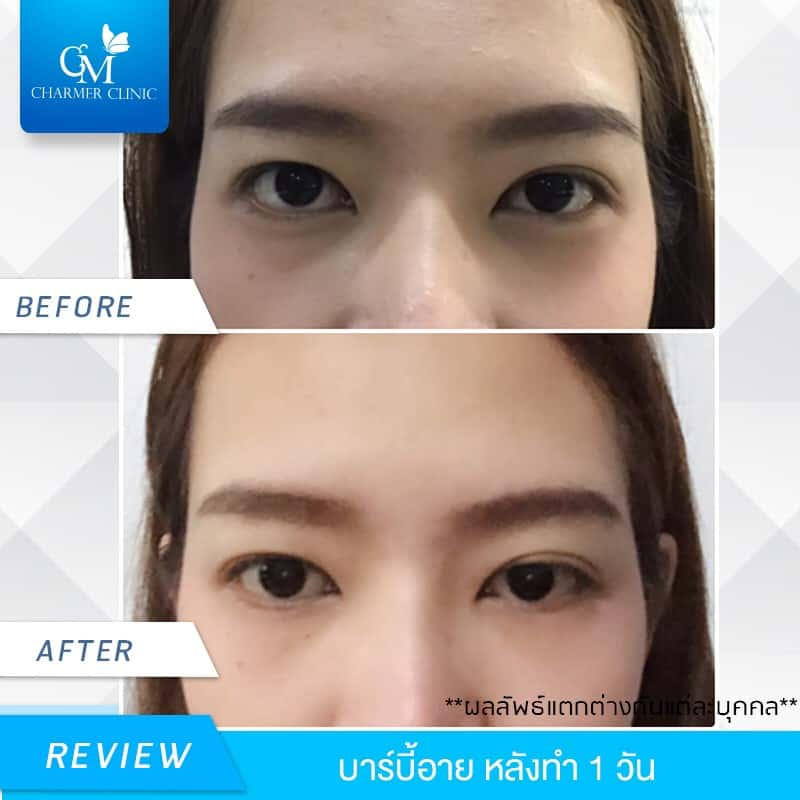 รีวิว Barbie Eye by Charmer Clinic