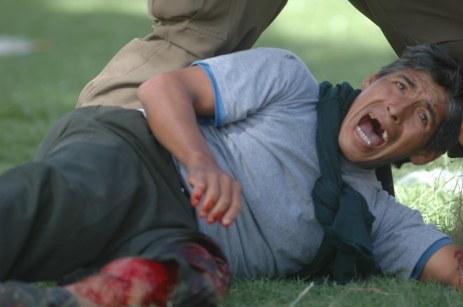 Campesino herido de bala (Foto prensa de Cochabamba, 11, 1, 2007)