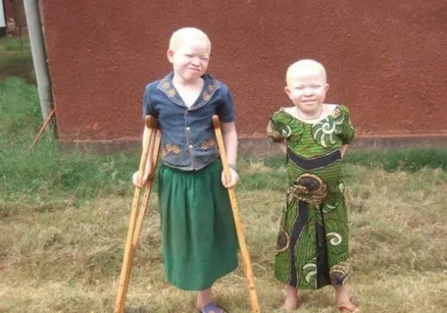 A triste realidade dos albinos