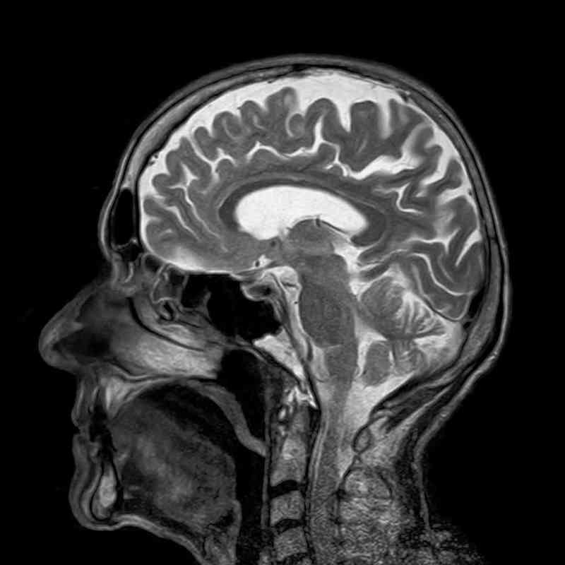 My MRI showed complete blockage of my sinuses
