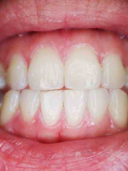I wish my teeth and gums were this healthy.