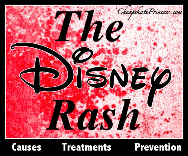 preventing the Disney rash