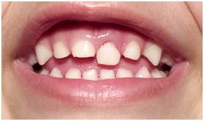trauma dentário1
