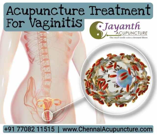 AcupunctureTreatmentForVaginitis-VaginalInfection