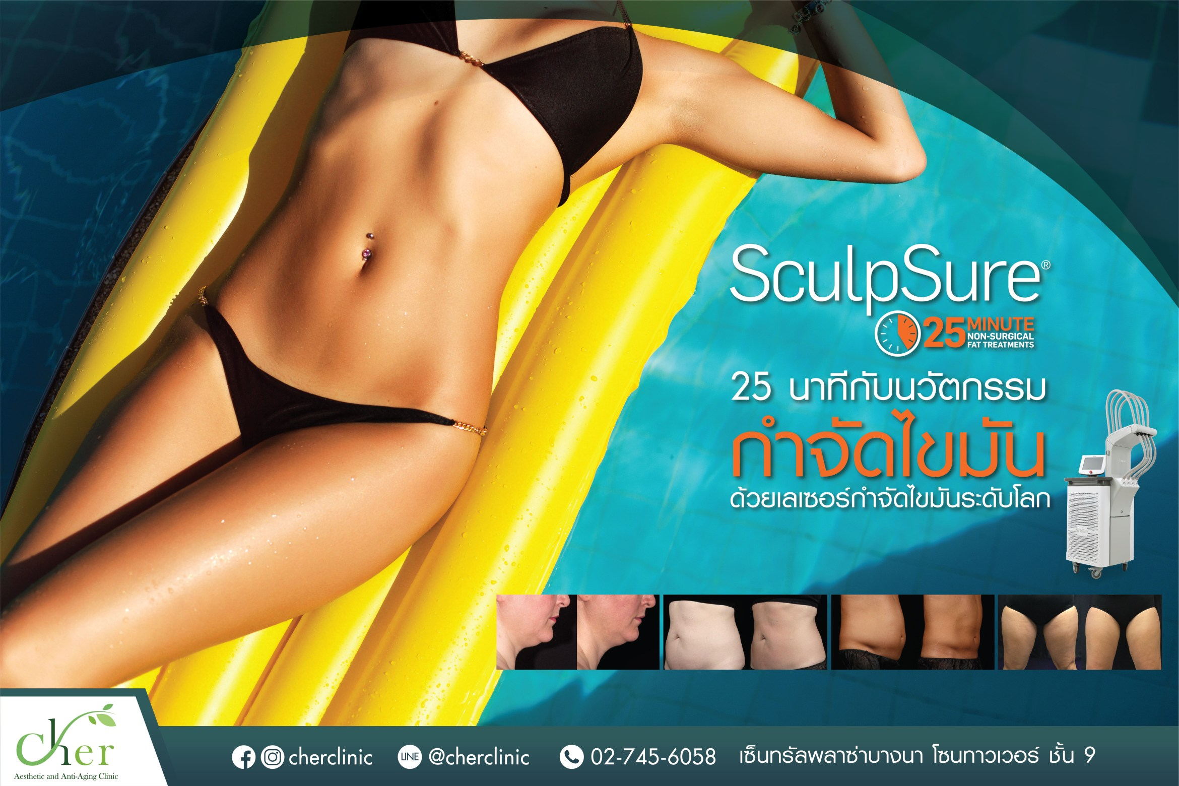 Sculpsure cher clinic