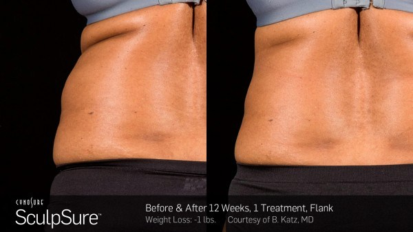 sculpsure before after2