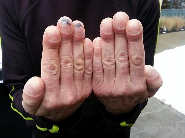 Зачем человеку ногти?