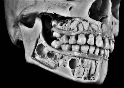 J-Skel: The Digital Age Estimator of Subadult Skeletons