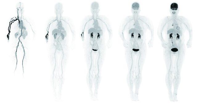 照片十五:uEXPLORER首批人體圖像之一:藥物經由手部靜脈注射進人體后,在人體各處的分佈隨時間的變化