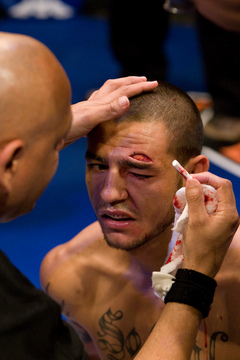 Cub Swanson After the Jose Aldo Fight