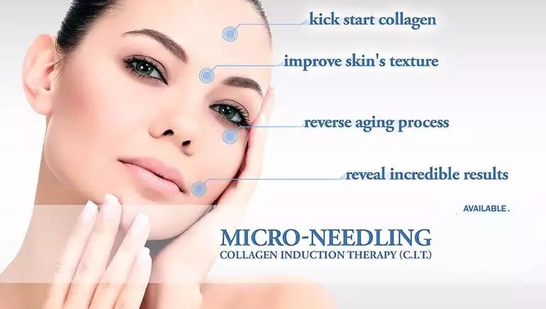 Microneedling Center For Aesthetic Medicine And Human