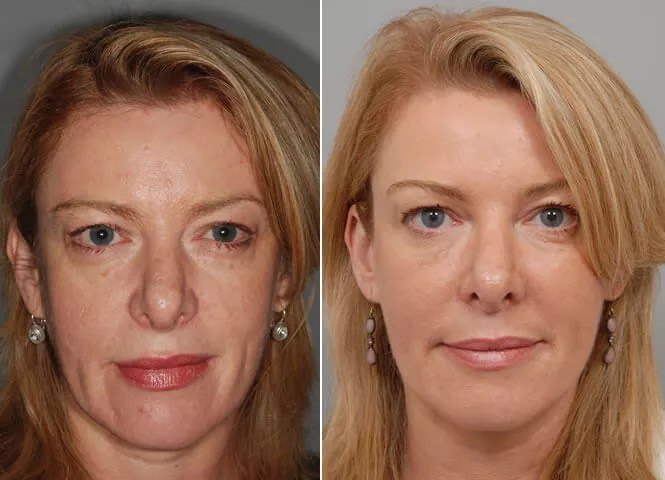 Micro-needling before and after - Chic la Vie Med Spa near