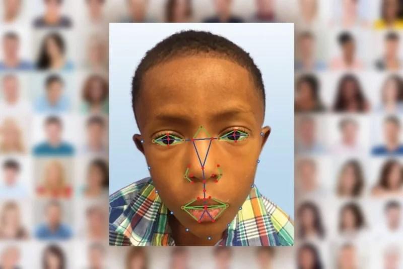 Software de reconhecimento facial ajuda a dianostigar doença rara