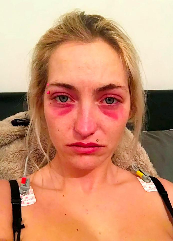 Ashleigh Earl Horrific moment a thug ran over his lover and battered her with a log