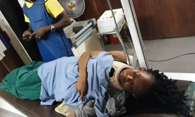 Woman narrates how she survived near-fatal car accident on Otedola bridge tanker explosion