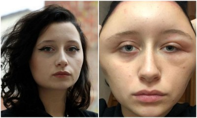 Teenager's head doubles in size after she suffers reaction to a hair dye 1
