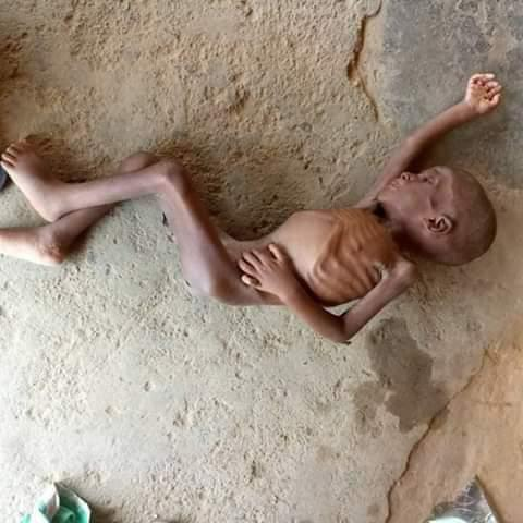 Boy labeled as Witchcraft in Akwa Ibom Transformed by Lady who Rescued him