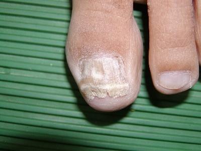 爪水虫 重度 画像