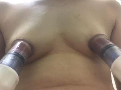 ニップルポンプで乳首吸引