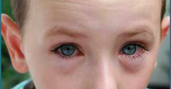 تحسس العين اسباب اعراض تشخيص علاج