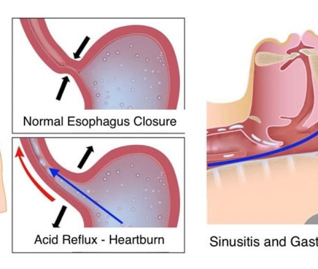 Laryngopharyngeal Reflux Laryngopharyngeal Reflux Treating Gastroesophageal