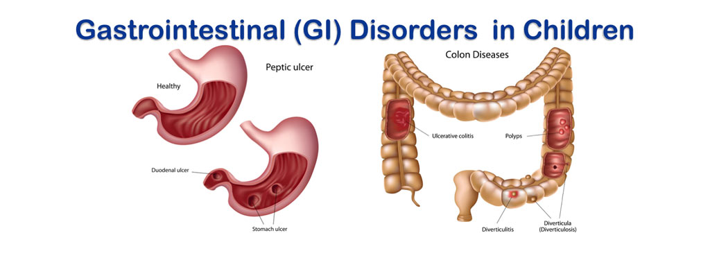 Crohn And Irritable Bowel Colitis Disease Ulcerative