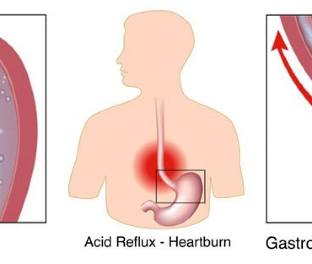 Pediatric Gastroenterologist Mona Dave Md Treats Gerd