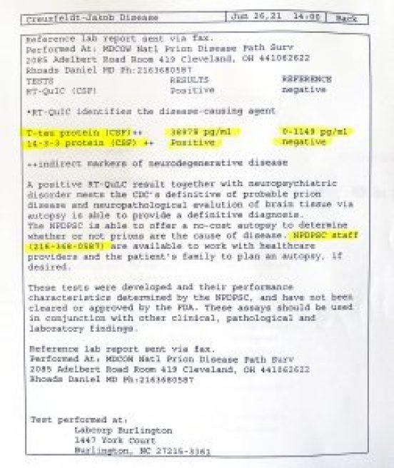 Creuzfeldt-Jakob disease