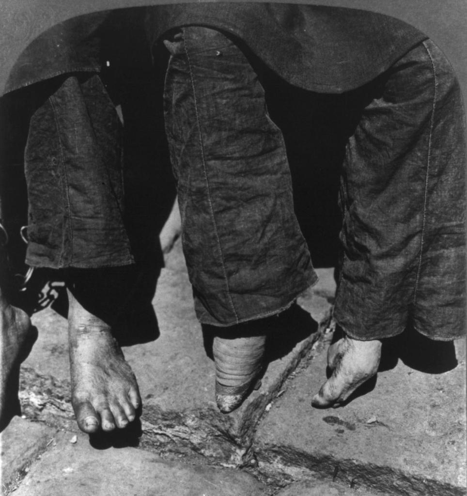 foot binding history